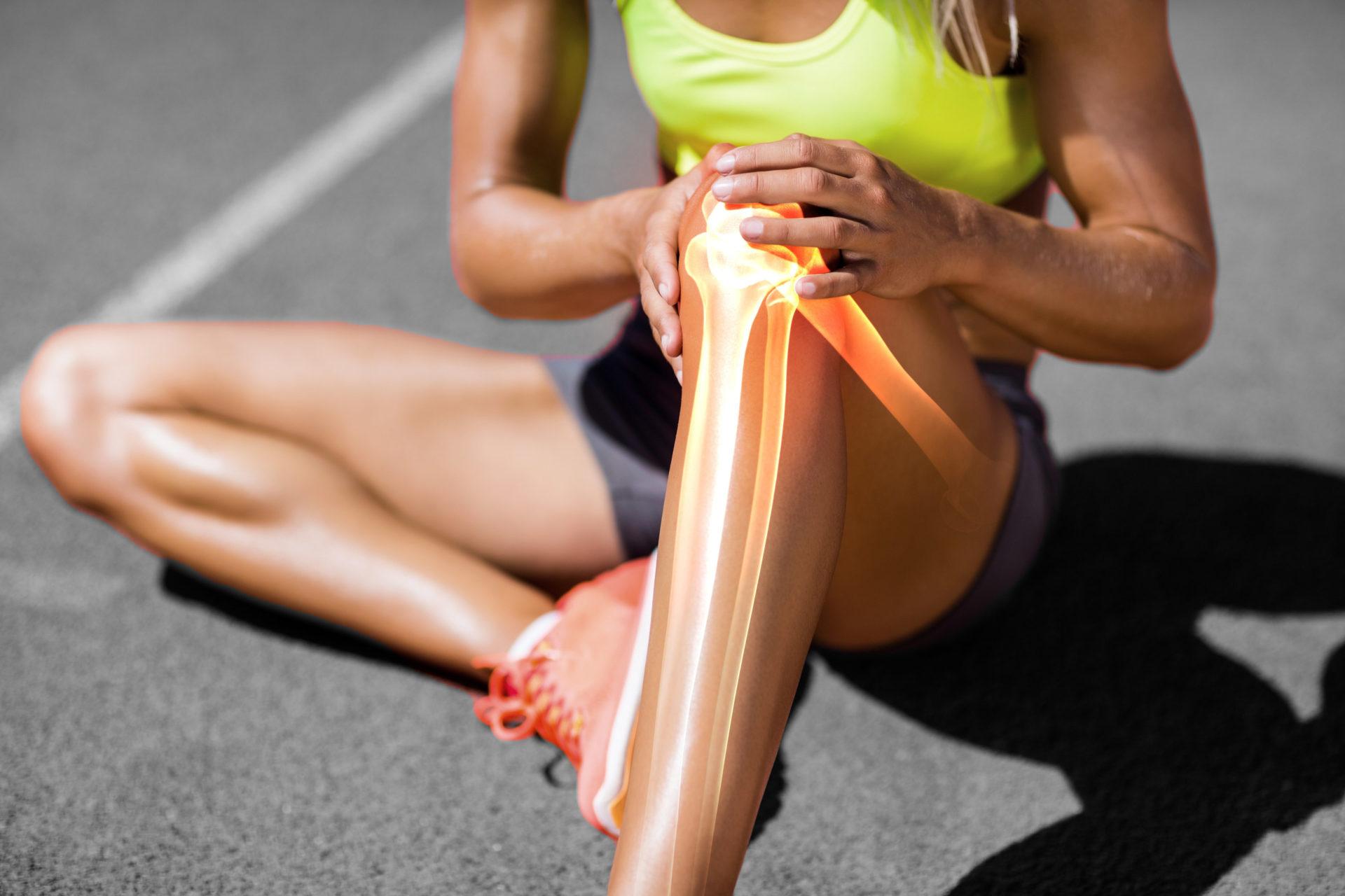 Wysportowana kobieta z bolącym kolanem, oznaczone zmiany zwyrodnieniowe